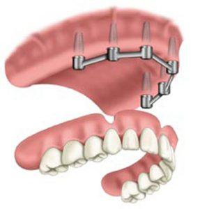 Съемное протезирование на имплантатах
