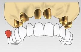 Импланты Dentsply Friadent