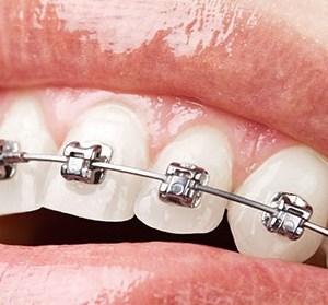 Purtarea unui aparat dentar fix