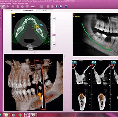 RPA Dental Equipment Digital Imaging MyRay iRYS