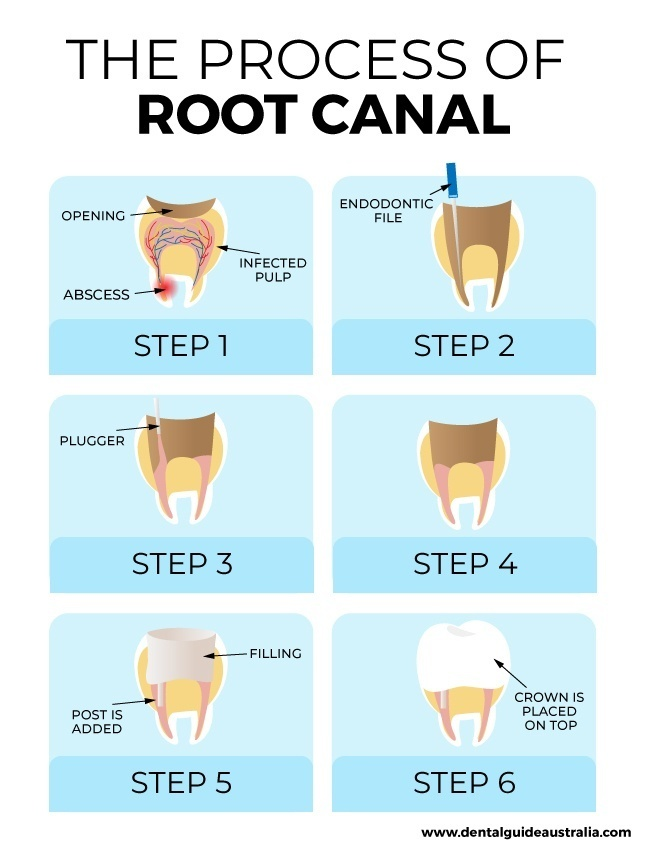 Root Canal Cost With Crown - Root Canal Toothache