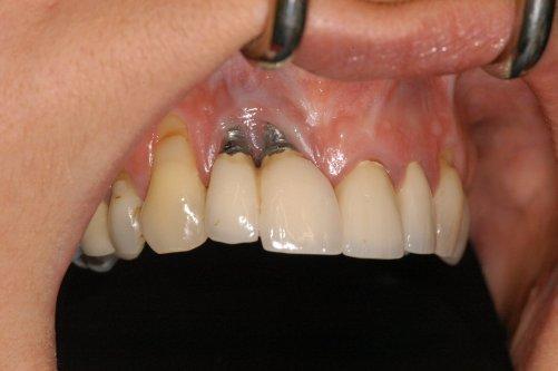 Perawatan Dental Implant- Global Estetik Dental Care