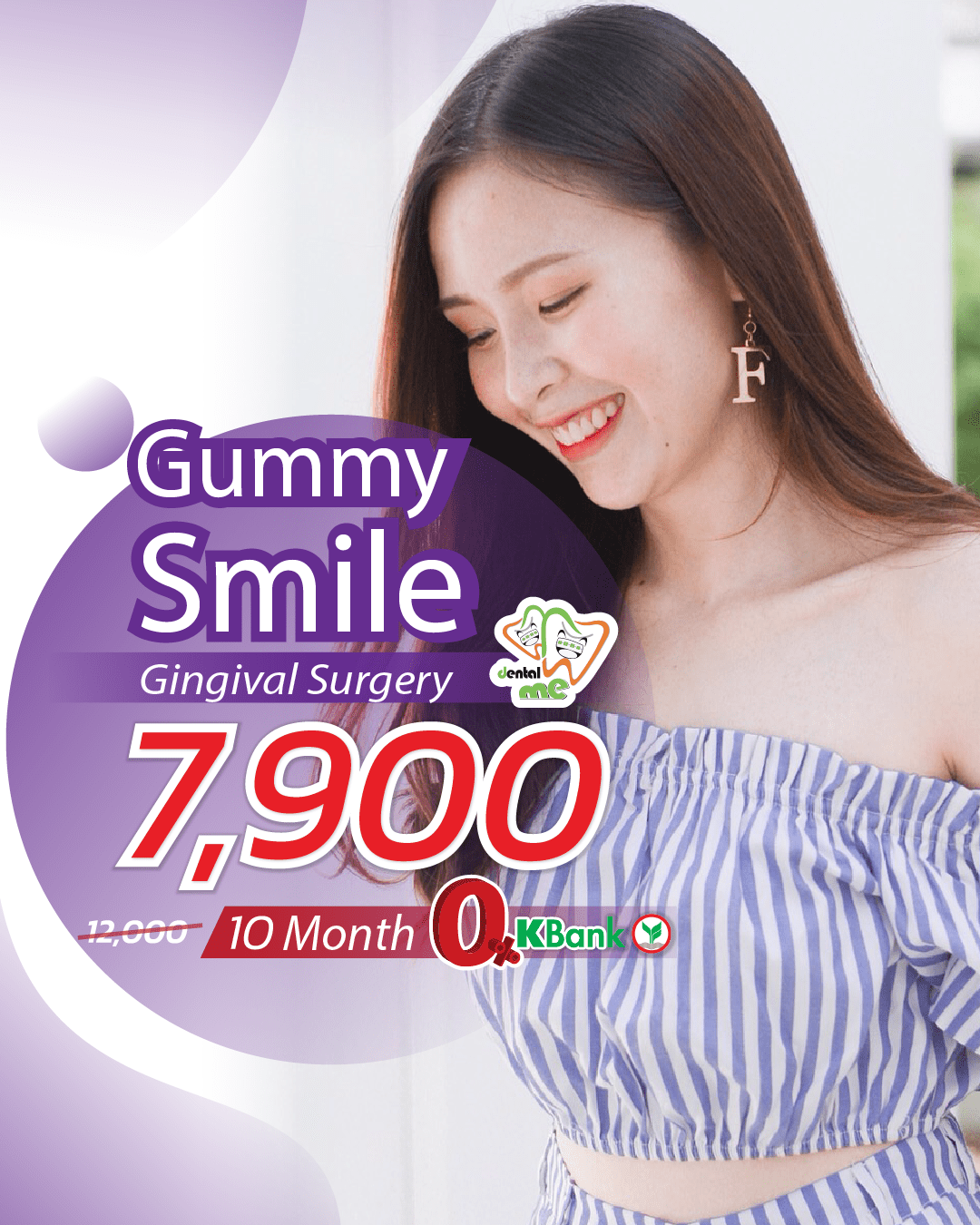 Gingival-Surgery-Gummy-Smile.png