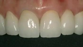 Best dental crowns Medellin
