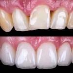 Cosmetic-Dentistry-Porcelain-Dental-Veneers