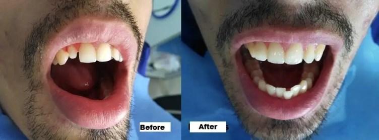 Dental crown Colombia Medellin