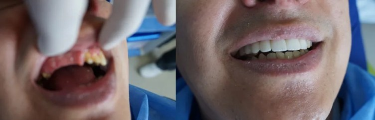 Dental implants abroad Medellín-Colombia
