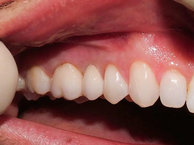 dental bridge abroad