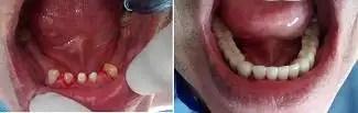 Dental bridge Zirconia case before after Medellín Colombia