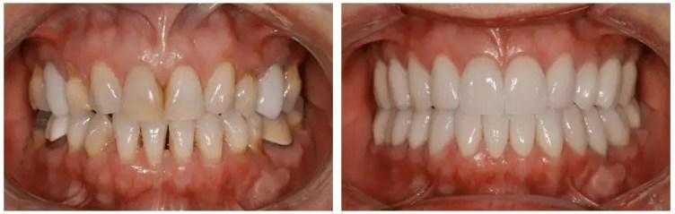 Dental veneers before after Medellin Colombia
