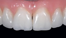 Intra-oral Repair Technique Ceramic Fracture