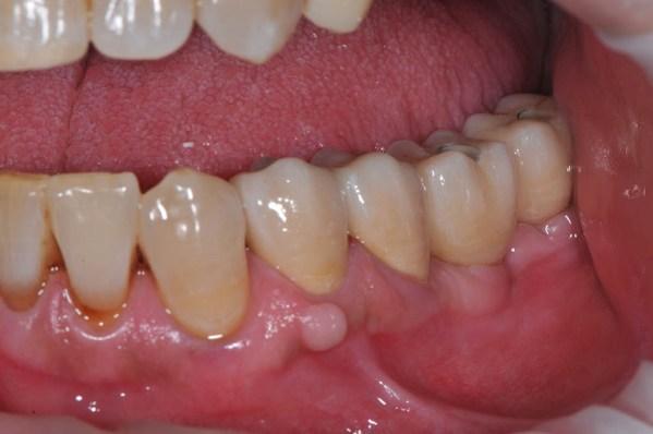 Aspect final în cavitatea orală al coroanelor mixte metalo-ceramice 34, 35 și al protezei parțiale fixe metalo-ceramice cu sprijin implantar înșurubată
