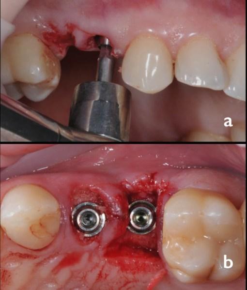 a, b. Detalii din etapa de înșurubare a bonturilor conice la nivelul implanturilor 14, 15 cu ajutorul cheii dinamometrice