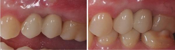 Aspectul final al restaurării în cavitatea orală