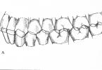 Angle's Classification