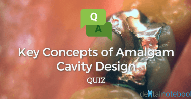 Key Concepts of Amalgam Cavity Design Quiz