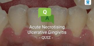 Acute Necrotising Ulcerative Gingivitis (ANUG) Quiz