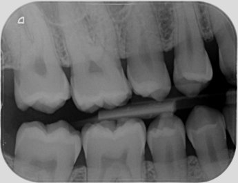 Dental Radiograph - Right bitewing