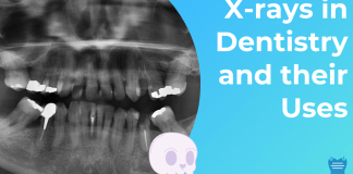 Dental X-rays and their Uses