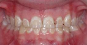 Bele mrlje na zubima (demineralizacija gleđi) nakon skidanja fiksne proteze