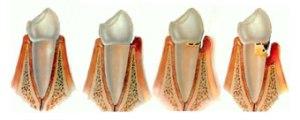 Faze razvoja parodontopatije-1. zdrave desni 2. gingivitis 3. parodontalni džep 4.dalje napredovanje bolesti i razaranje kosti oko zuba