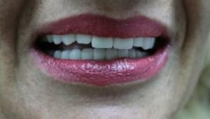 zubni implanti, krunice na implantima
