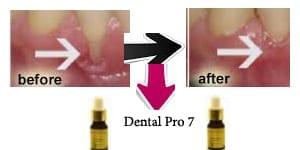 What Cures Gum Disease