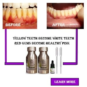 Dental Pro 7 Great Product