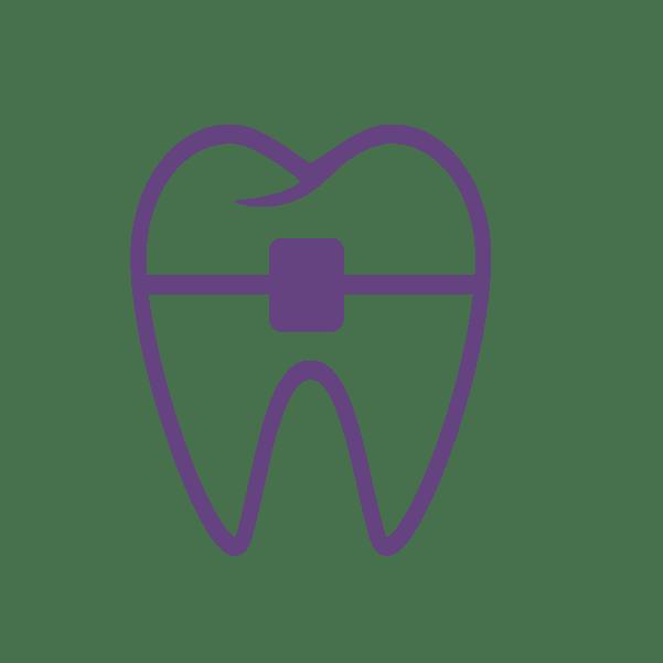 leczenie wad zębów
