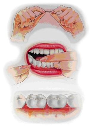 عادة ما تكون العادة الضارة لطامير تسمير ليست غير جذابة فحسب، بل تدمر أيضا إلى الأسنان. من هذه الأسنان يمكن الكراك والكسر. يمكنك التخلص منها باستخدام مانيكير منتظم أو طلاء مرير خاص للأظافر. يمكن أن تساعد هواية جديدة أيضا، والتي تحتل أيديها وتصرفها من الرغبة في nibbble nails.