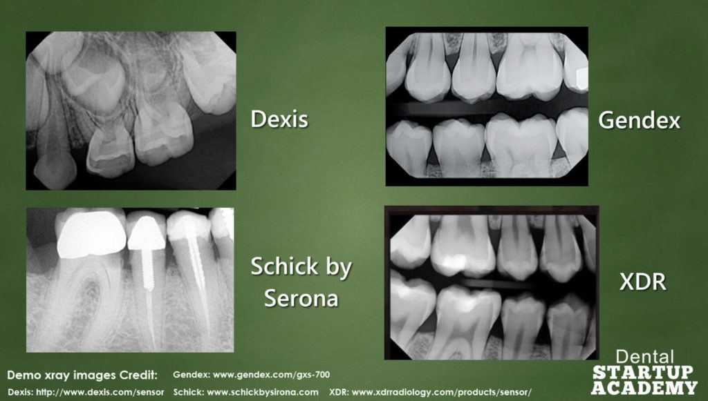 Dental Xray Sensor What You Need To Consider Before You Buy