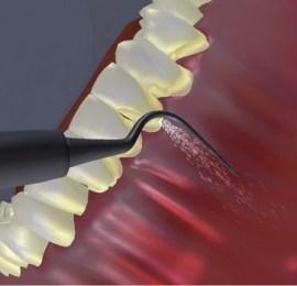 Ultrasonic Scaling Side Effects