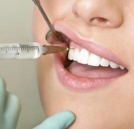 Complications of Local Anesthesia