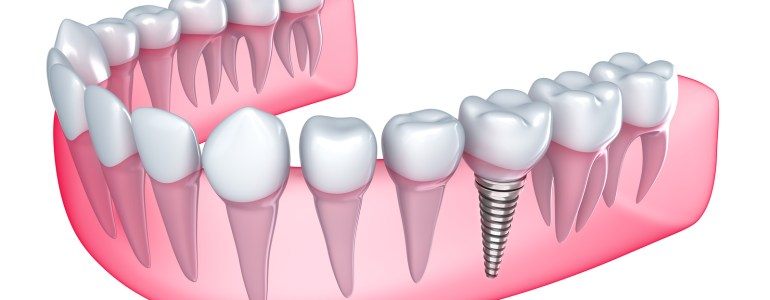 dental-implant-procedures