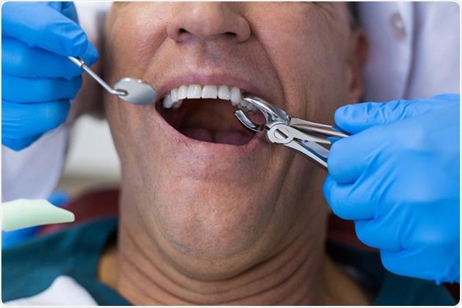 Chirurgie dento-alveolară