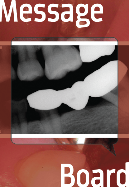 Key And Keyway Dental