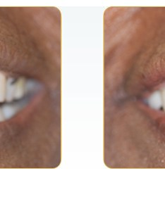 Veneers yadkinville before and after also smile gallery we are concerned of making your as rh dentalvirtue
