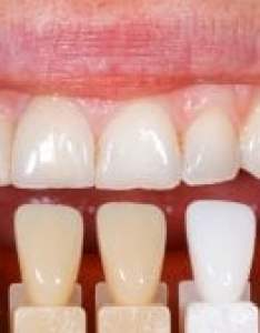 Colour matching teeth also what are dental veneers learn about veneer costs and types here rh dentaly
