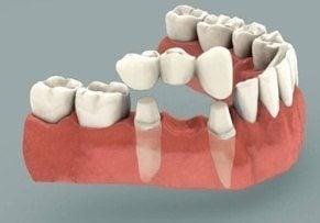 prothèse dentaire : le bridge