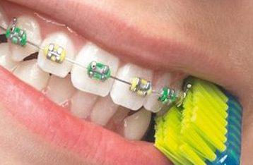 Brosse a dent appareil dentaire - dentapass