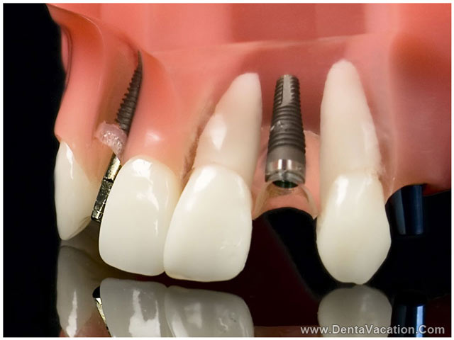 Porcelain Tooth Implant