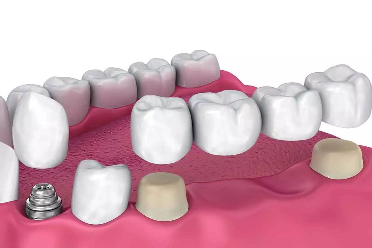Dental Implant and dental bridge