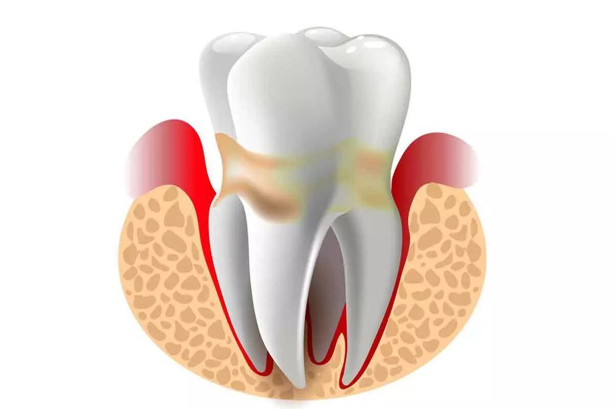 Periodontal Disease Help