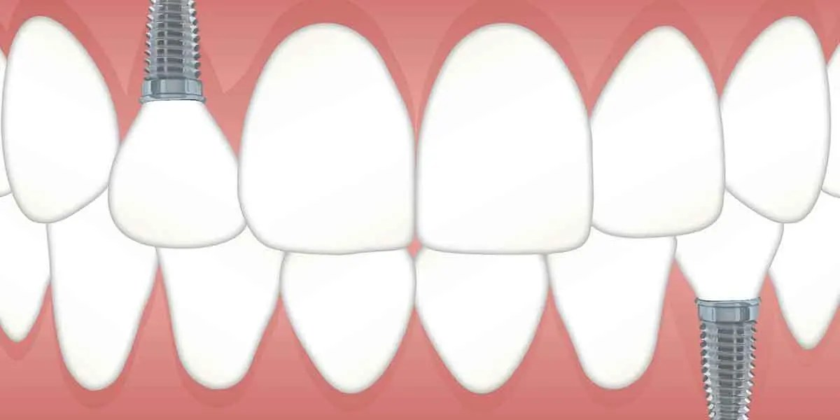 Dental Implants – Procedure and Benefits