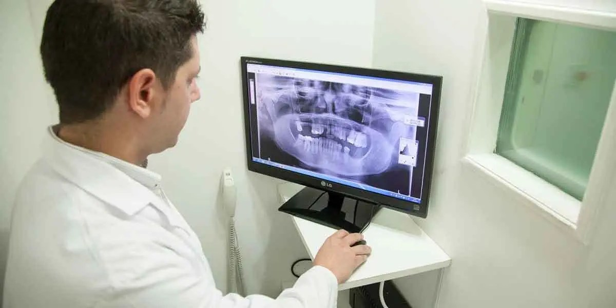 Quality Dental Care Brooklyn Guide: The Need for Fixed Dental Bridges