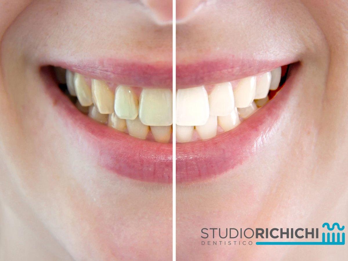 sbiancamento denti vitali