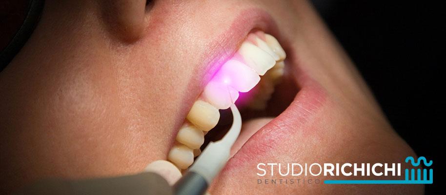 trattamento laser gengive