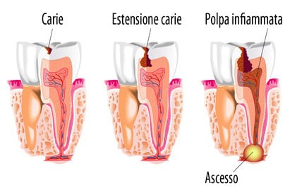 ascesso_dentale