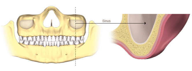 bone-loss-sinus (2)