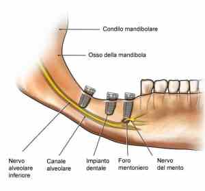 impianto-inserito-sul-nervo-parestesia-labbro